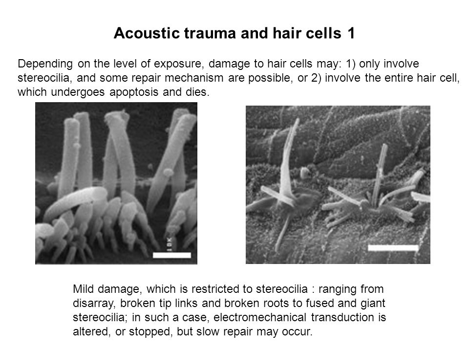 Acoustic trauma and hair cells 1