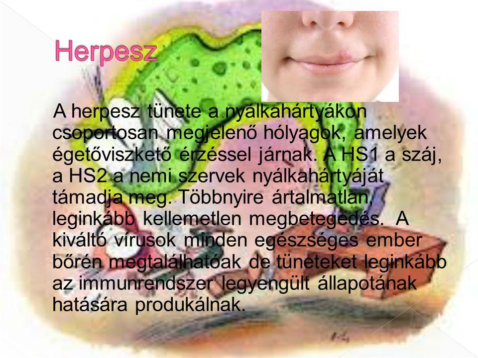 Herpesz