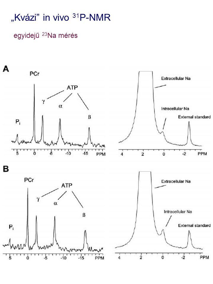 """""""Kvázi in vivo 31P-NMR egyidejű 23Na mérés"""