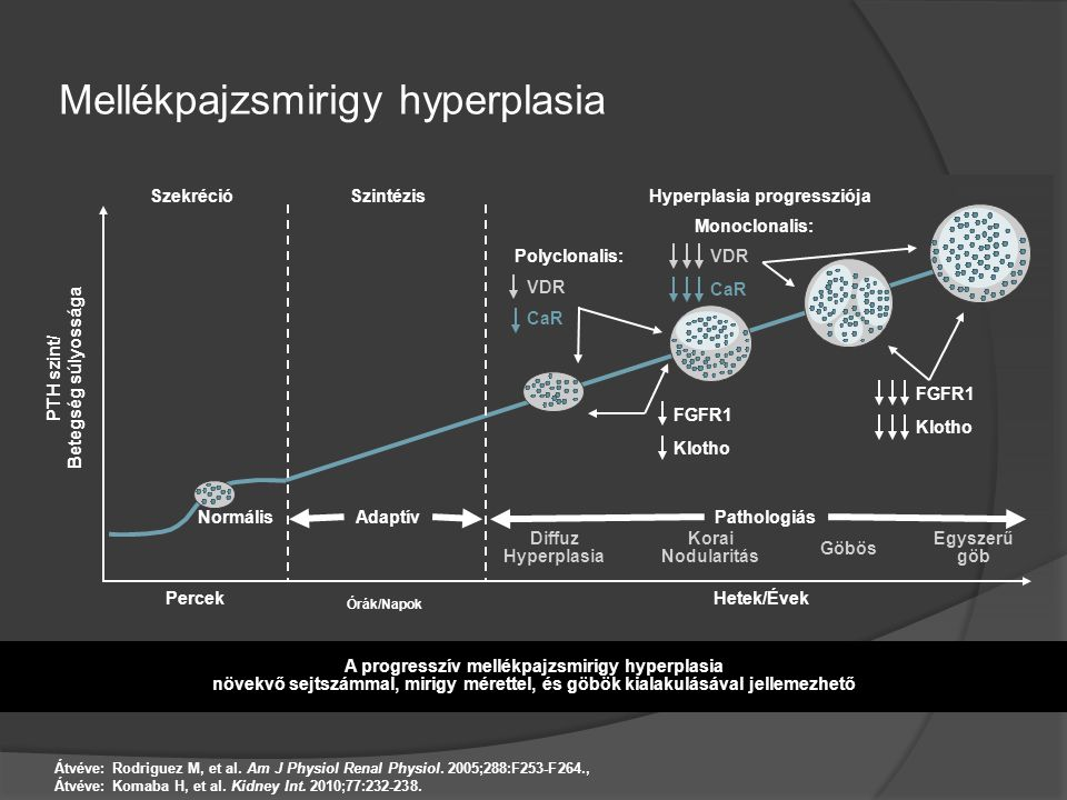 Mellékpajzsmirigy hyperplasia