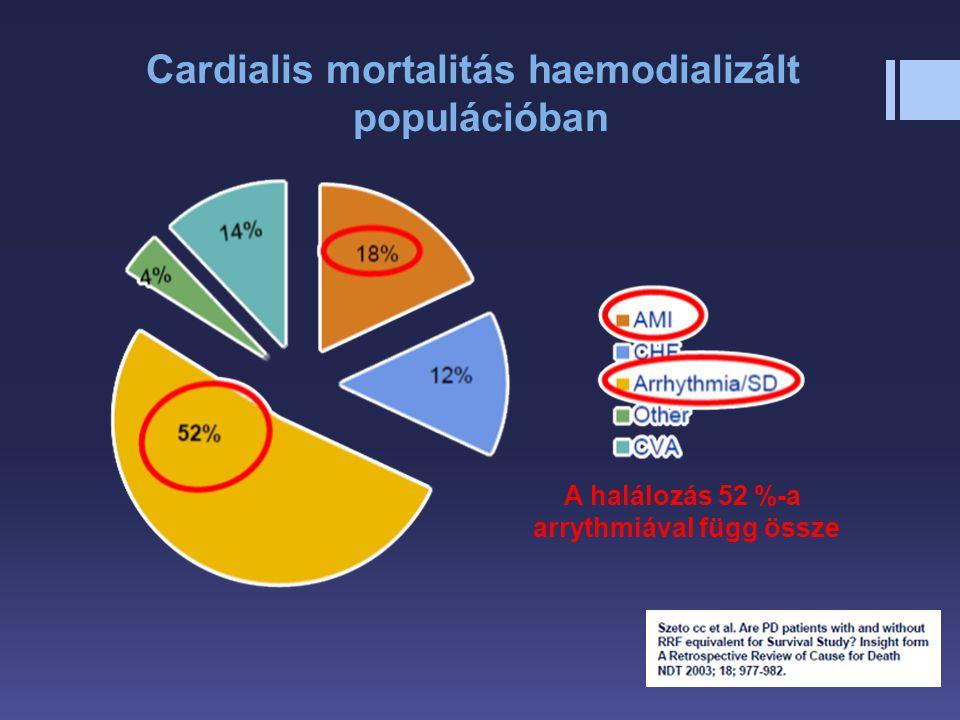 Cardialis mortalitás haemodializált arrythmiával függ össze