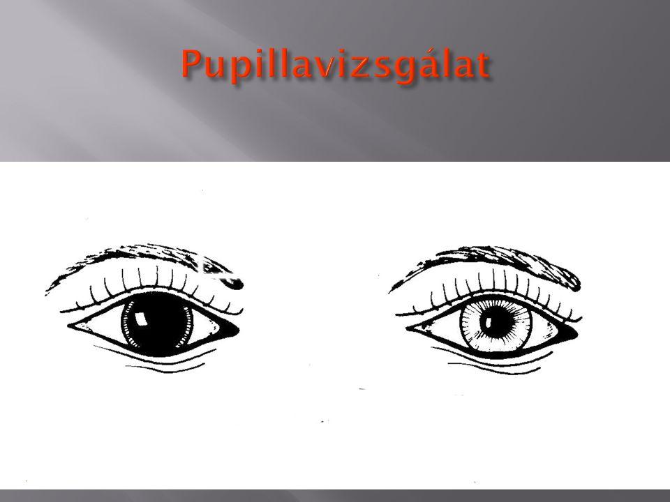 Pupillavizsgálat