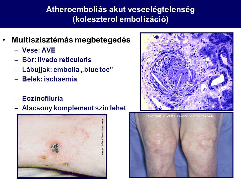 Atheroemboliás akut veseelégtelenség (koleszterol embolizáció)