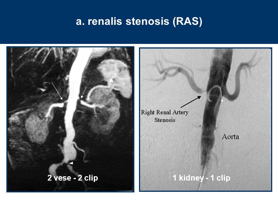 a. renalis stenosis (RAS)