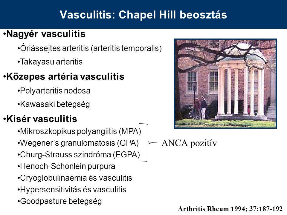 Vasculitis: Chapel Hill beosztás