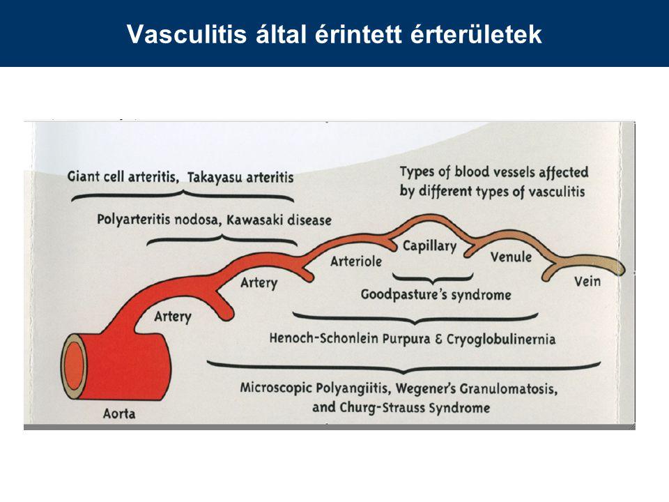 Vasculitis által érintett érterületek