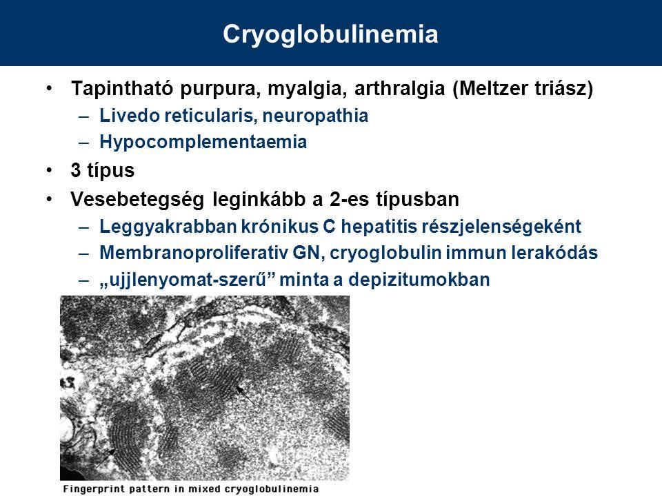 Cryoglobulinemia Tapintható purpura, myalgia, arthralgia (Meltzer triász) Livedo reticularis, neuropathia.