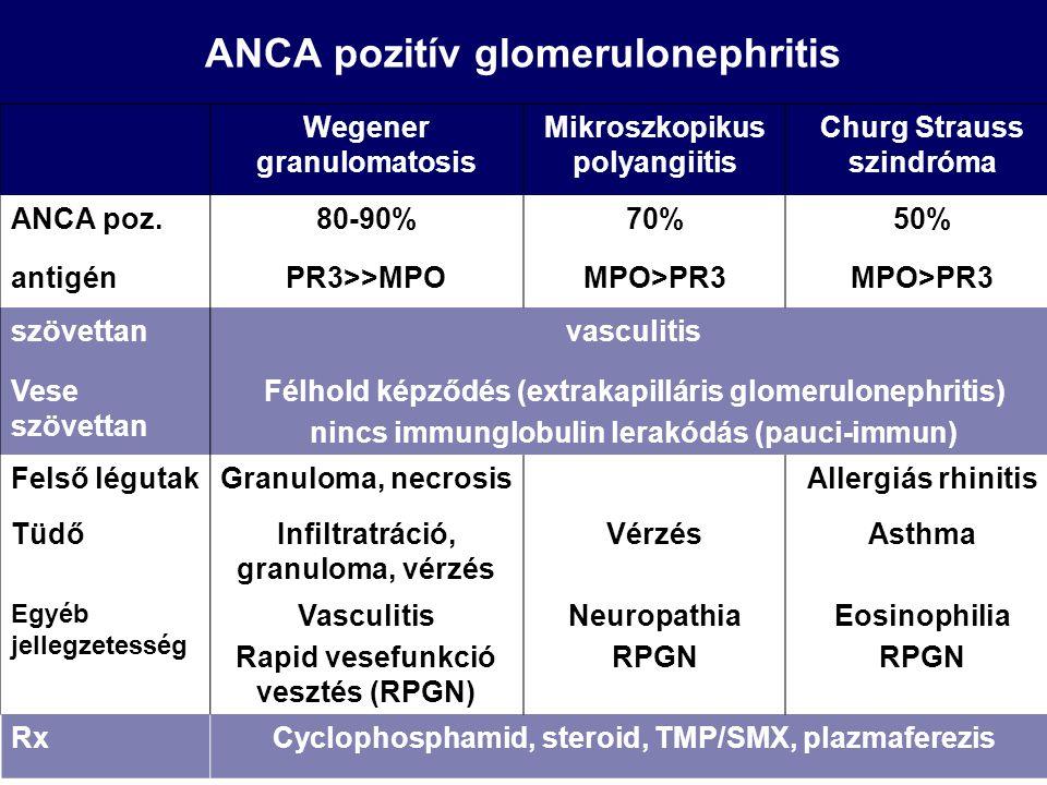 ANCA pozitív glomerulonephritis