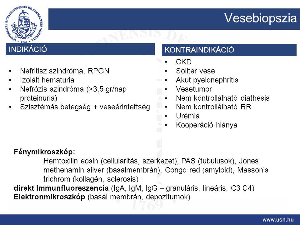 Vesebiopszia INDIKÁCIÓ KONTRAINDIKÁCIÓ Nefritisz szindróma, RPGN