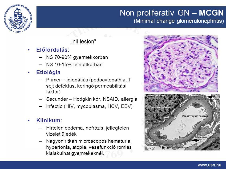 Non proliferatív GN – MCGN