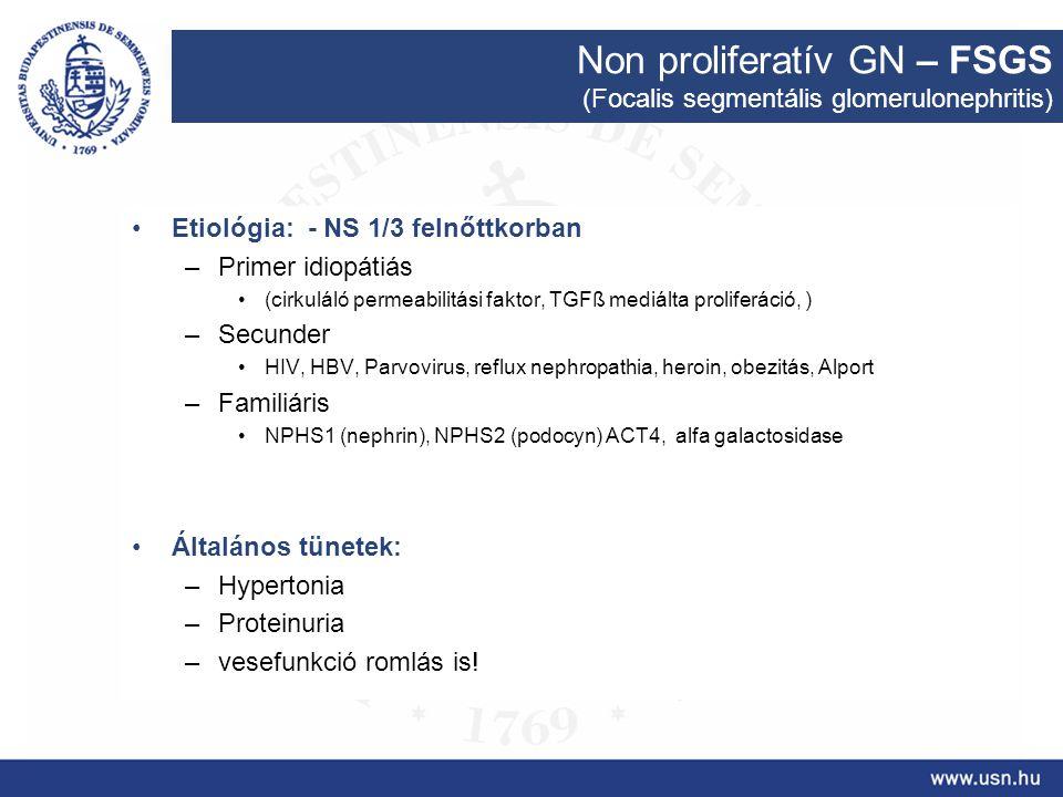 Non proliferatív GN – FSGS
