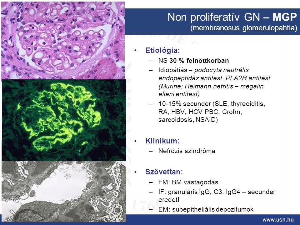 Non proliferatív GN – MGP