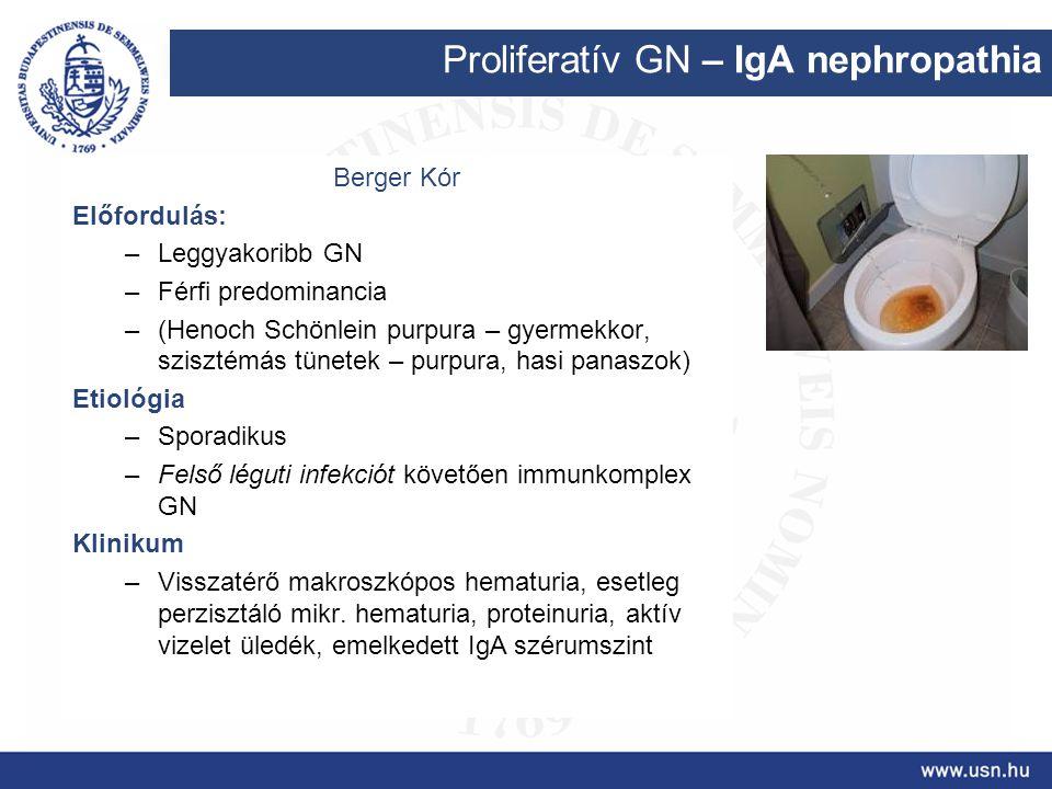 Proliferatív GN – IgA nephropathia