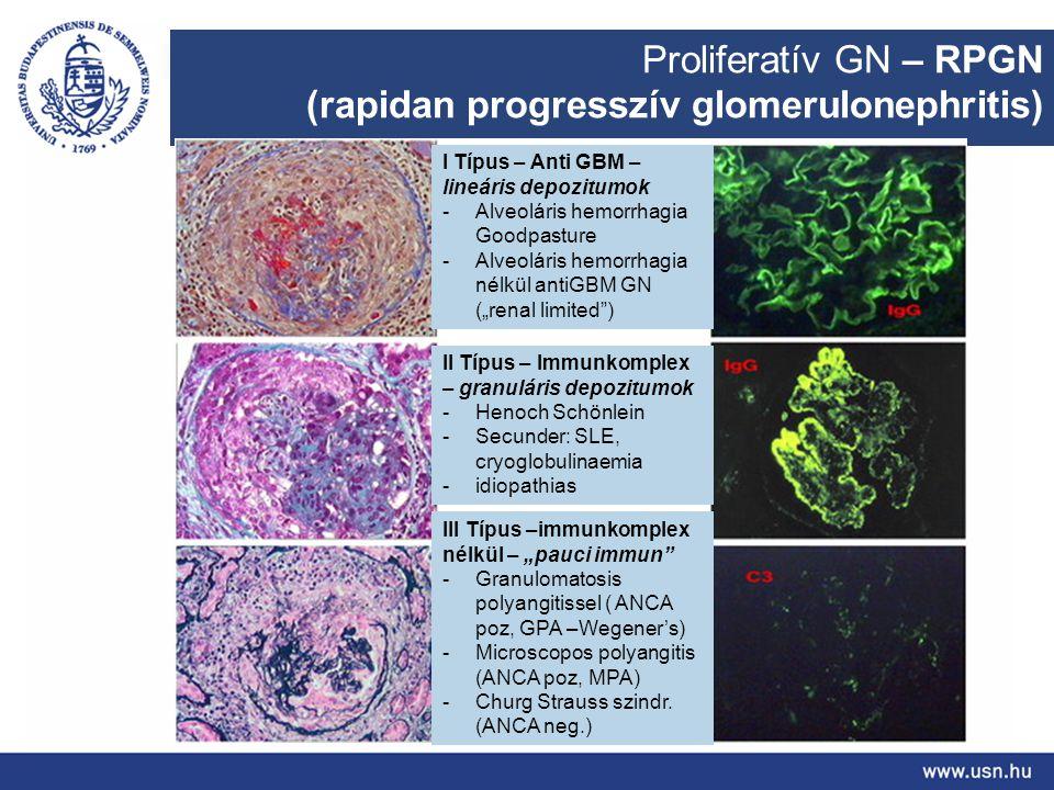 (rapidan progresszív glomerulonephritis)