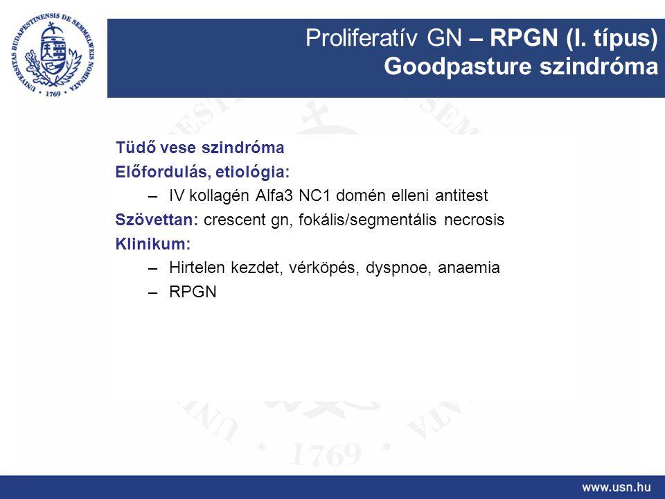 Proliferatív GN – RPGN (I. típus) Goodpasture szindróma