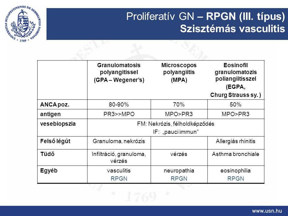 Proliferatív GN – RPGN (III. típus) Szisztémás vasculitis