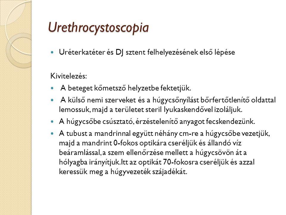 Urethrocystoscopia Uréterkatéter és DJ sztent felhelyezésének első lépése. Kivitelezés: A beteget kőmetsző helyzetbe fektetjük.