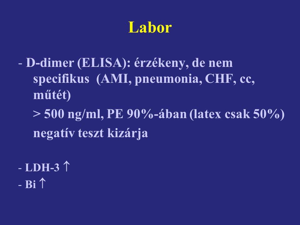 Labor D-dimer (ELISA): érzékeny, de nem specifikus (AMI, pneumonia, CHF, cc, műtét) > 500 ng/ml, PE 90%-ában (latex csak 50%)