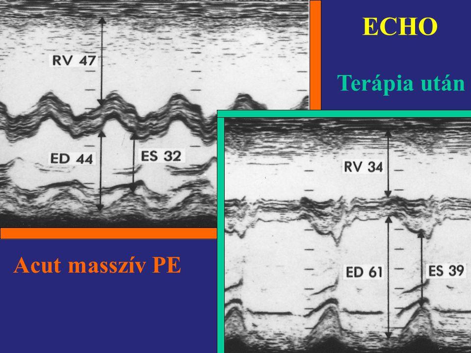 ECHO Terápia után Acut masszív PE