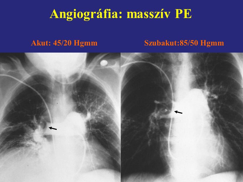 Angiográfia: masszív PE