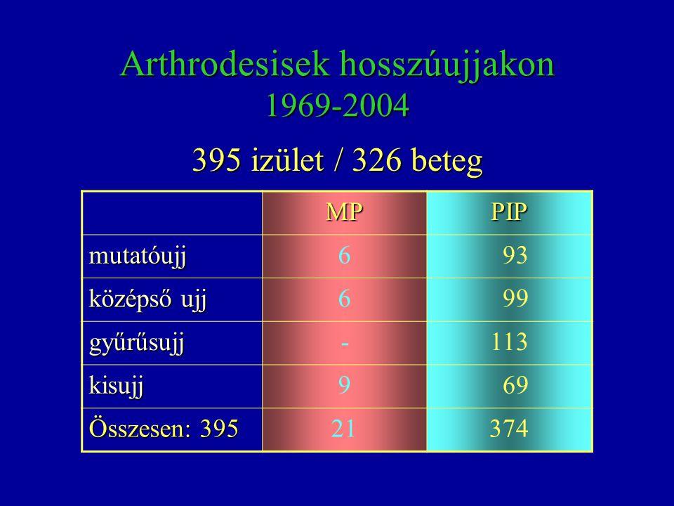 Arthrodesisek hosszúujjakon 1969-2004