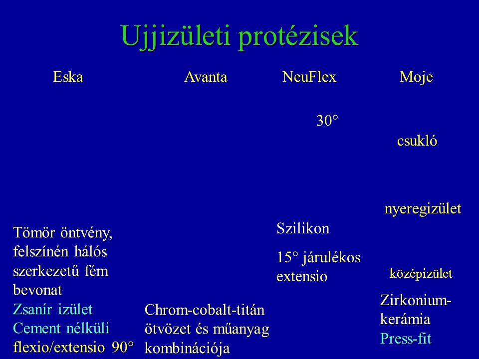 Ujjizületi protézisek