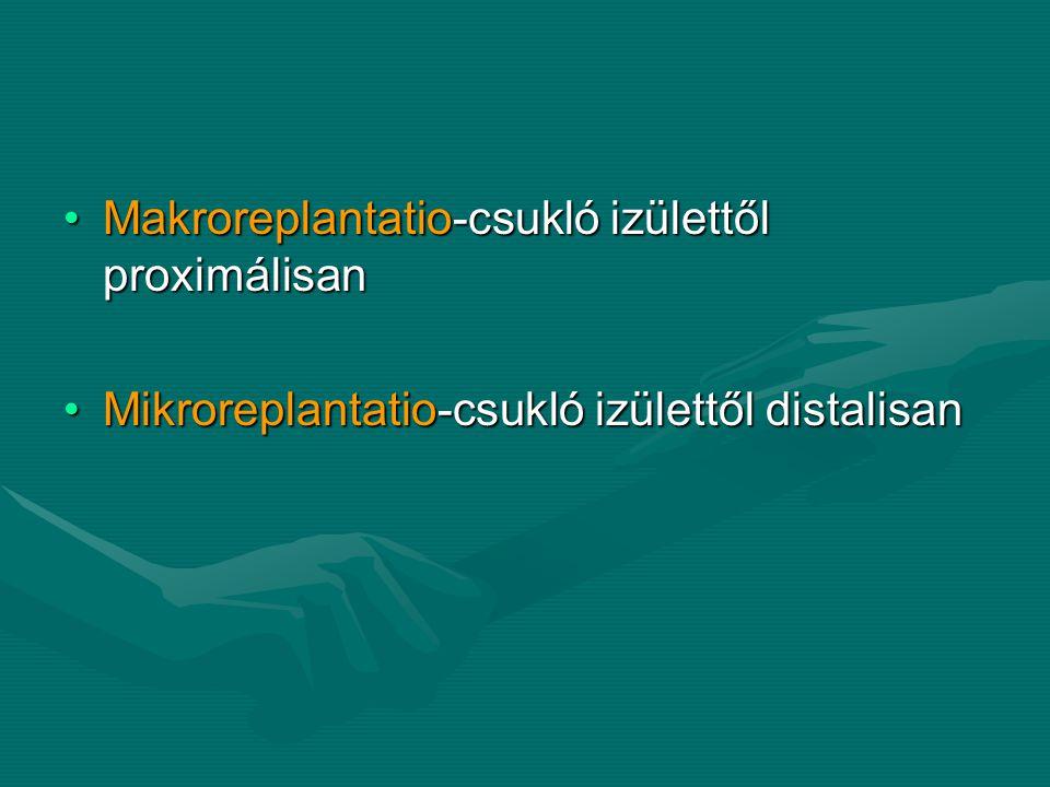Makroreplantatio-csukló izülettől proximálisan
