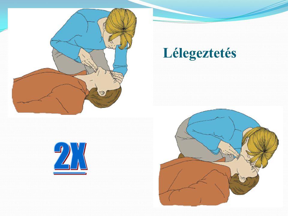 Lélegeztetés 2X