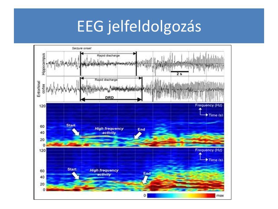 EEG jelfeldolgozás