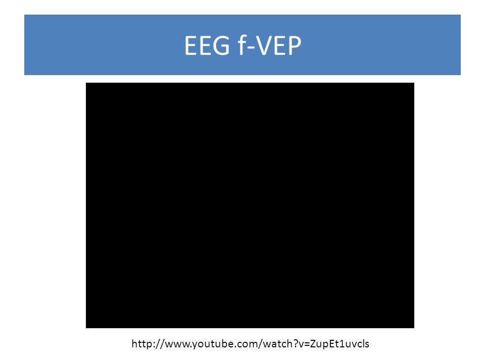 EEG f-VEP http://www.youtube.com/watch v=ZupEt1uvcls