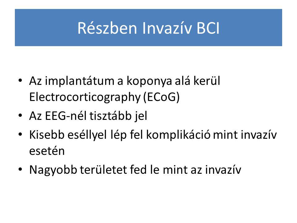 Részben Invazív BCI Az implantátum a koponya alá kerül Electrocorticography (ECoG) Az EEG-nél tisztább jel.