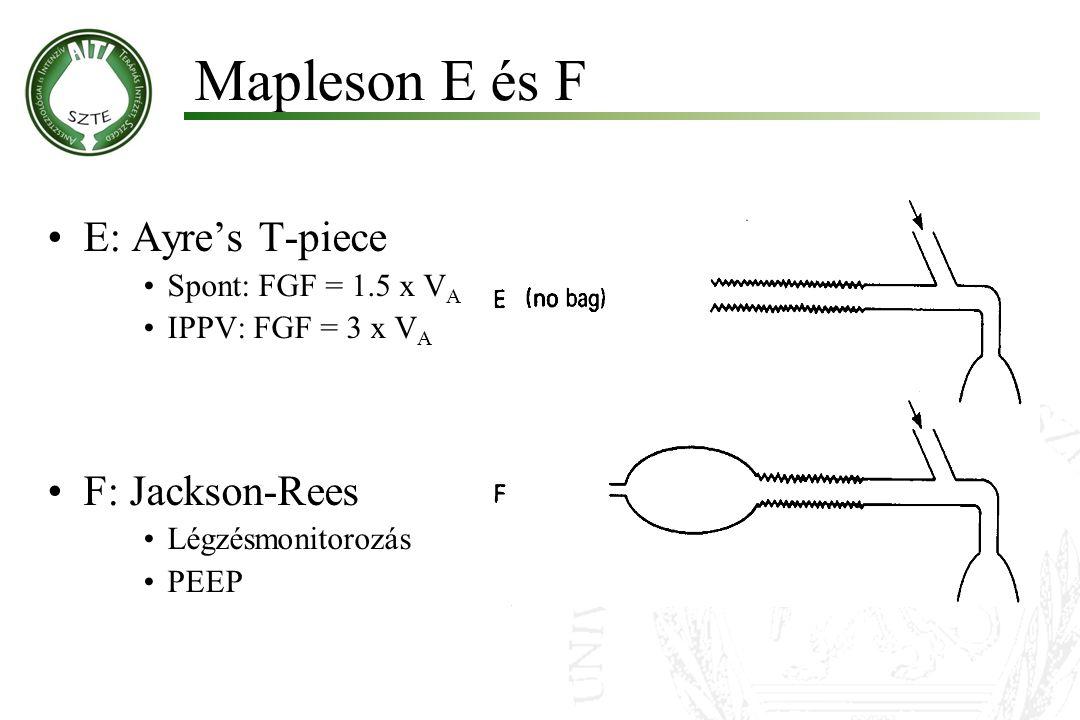 Mapleson E és F E: Ayre's T-piece F: Jackson-Rees