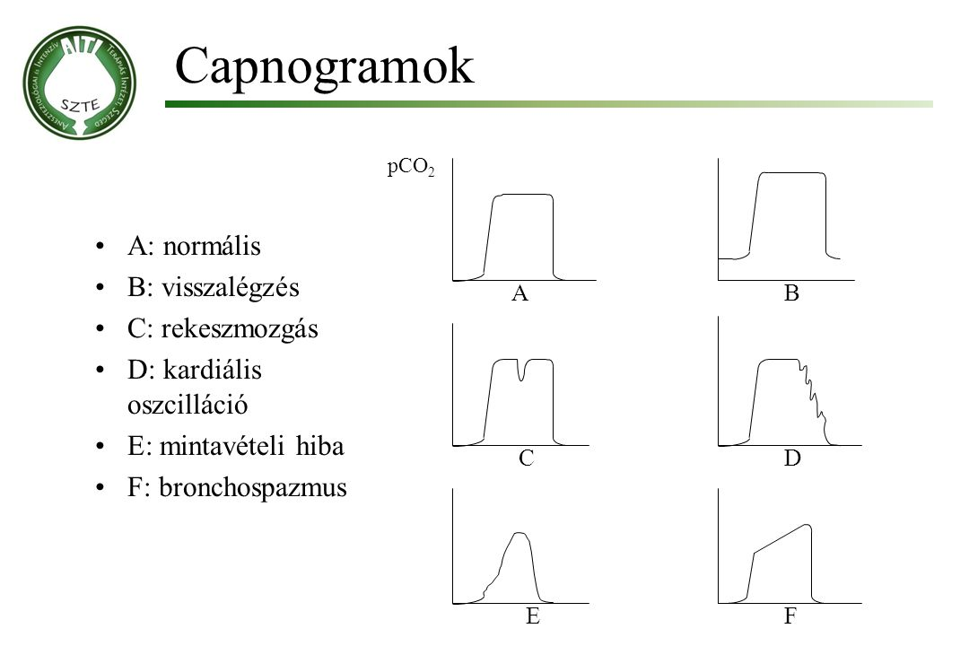 Capnogramok A: normális B: visszalégzés C: rekeszmozgás