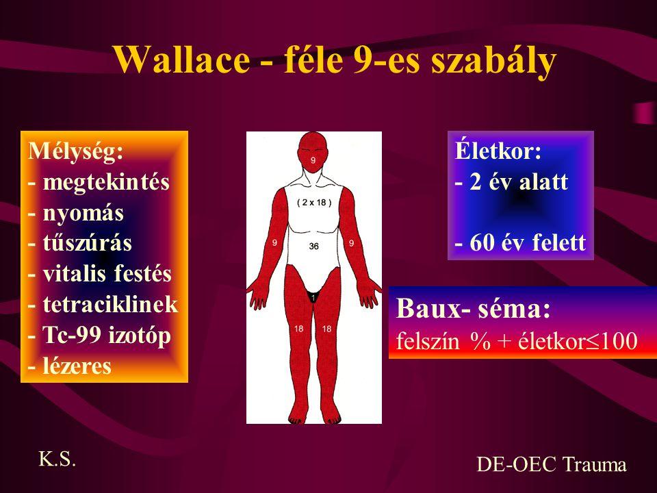 Wallace - féle 9-es szabály