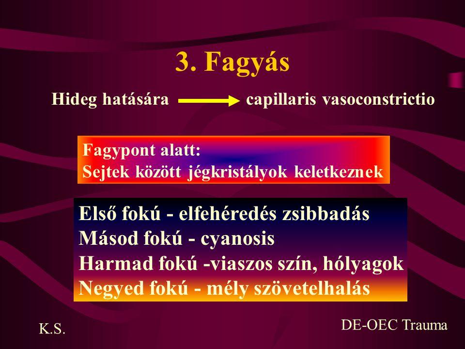 3. Fagyás Első fokú - elfehéredés zsibbadás Másod fokú - cyanosis