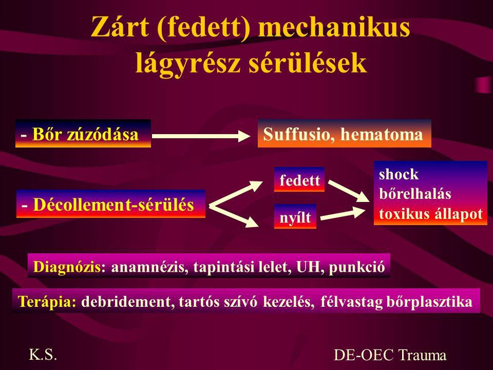 Zárt (fedett) mechanikus lágyrész sérülések