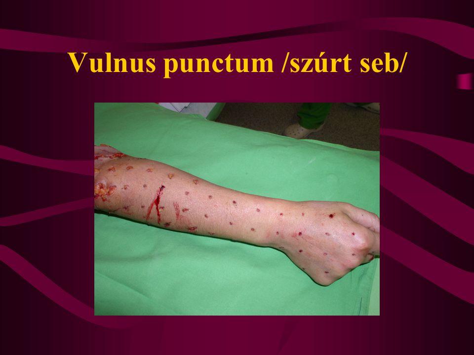Vulnus punctum /szúrt seb/
