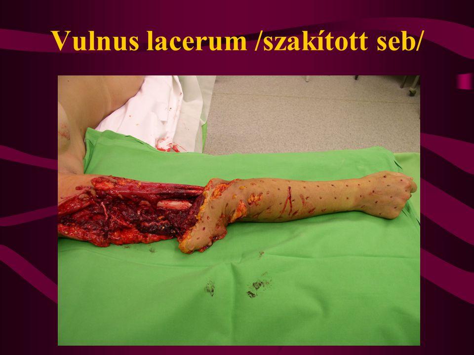 Vulnus lacerum /szakított seb/