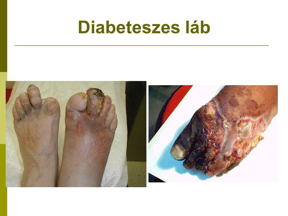 Diabeteszes láb