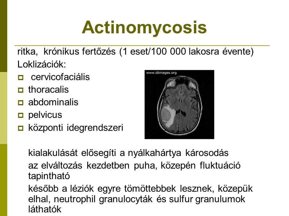 Actinomycosis ritka, krónikus fertőzés (1 eset/100 000 lakosra évente)