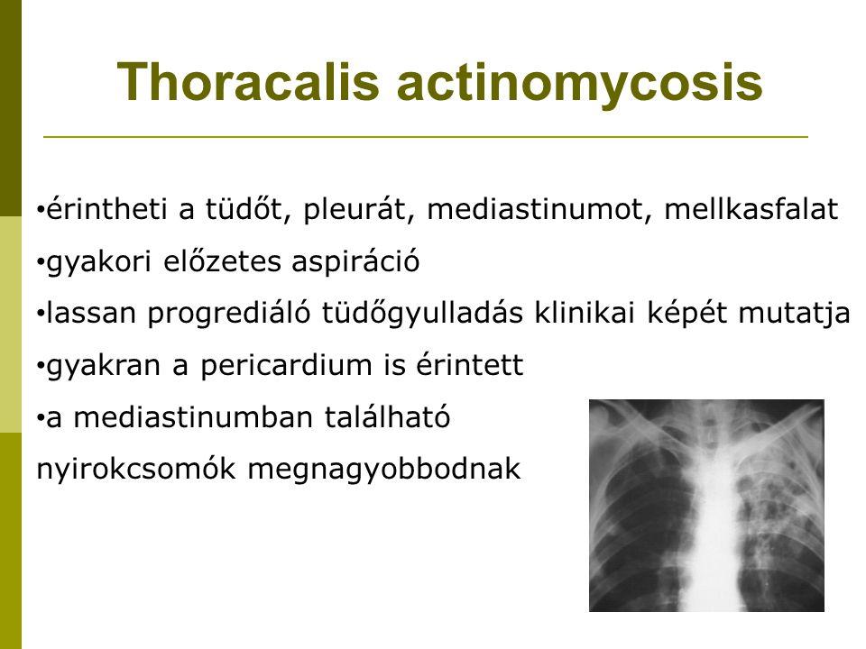 Thoracalis actinomycosis