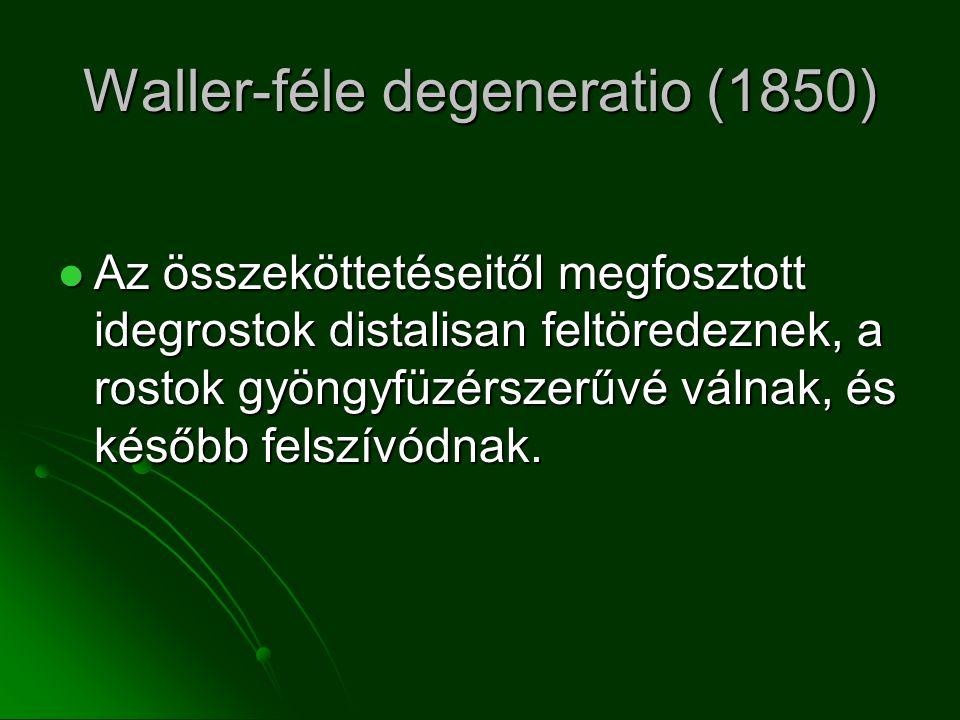 Waller-féle degeneratio (1850)