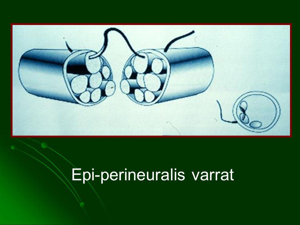Epi-perineuralis varrat