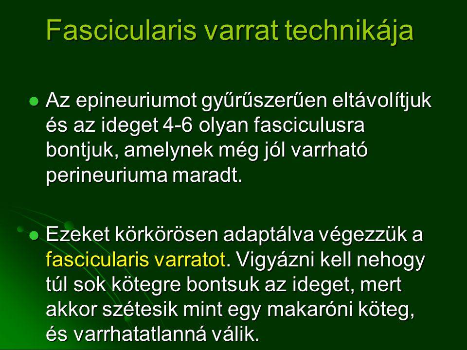 Fascicularis varrat technikája