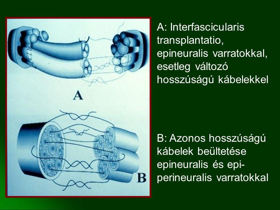 A: Interfascicularis transplantatio, epineuralis varratokkal, esetleg változó hosszúságú kábelekkel