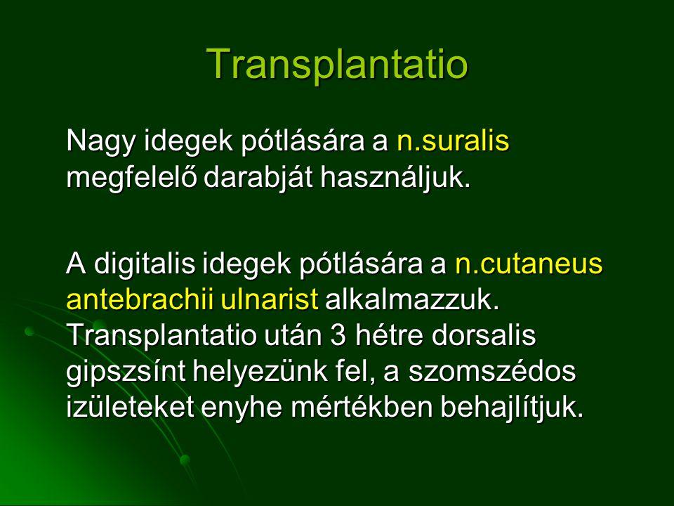 Transplantatio Nagy idegek pótlására a n.suralis megfelelő darabját használjuk.