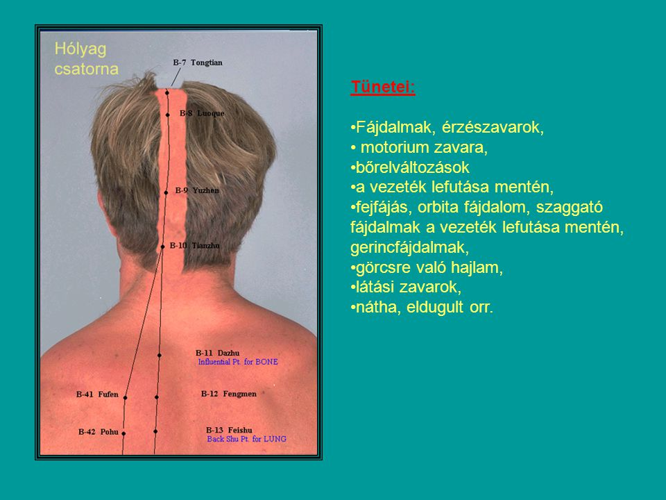 Tünetei: Fájdalmak, érzészavarok, motorium zavara, bőrelváltozások. a vezeték lefutása mentén,
