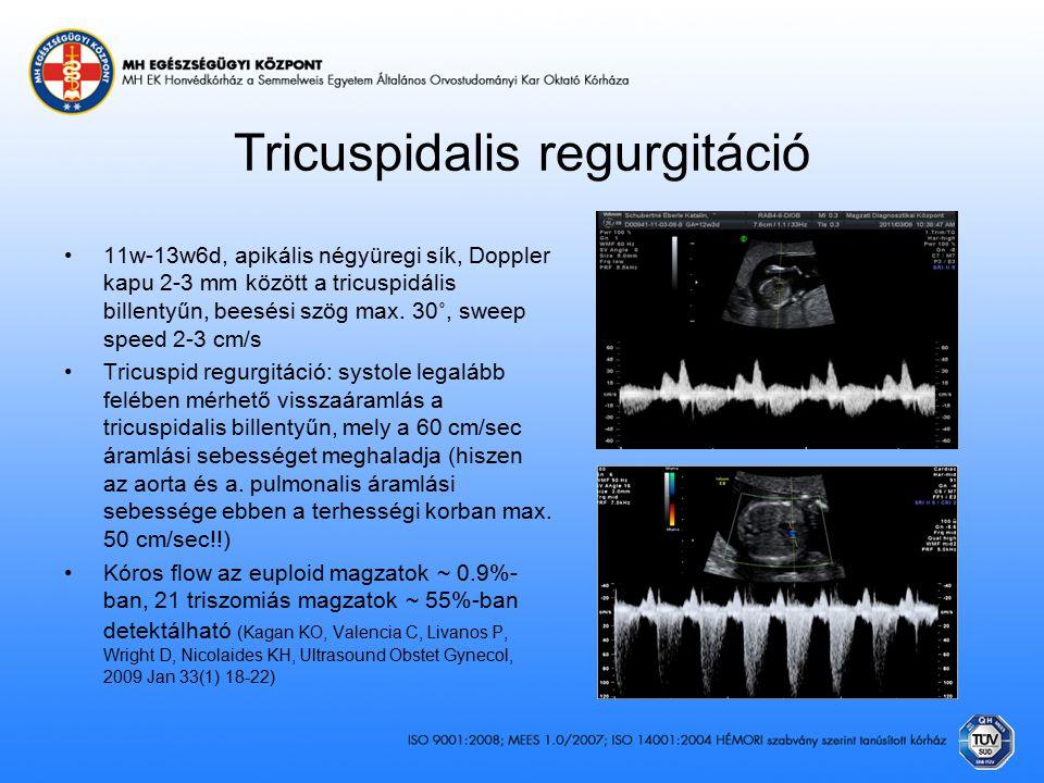 Tricuspidalis regurgitáció