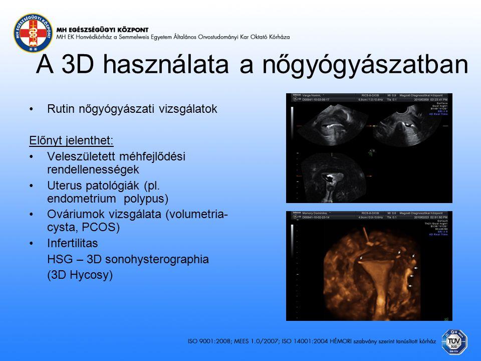 A 3D használata a nőgyógyászatban