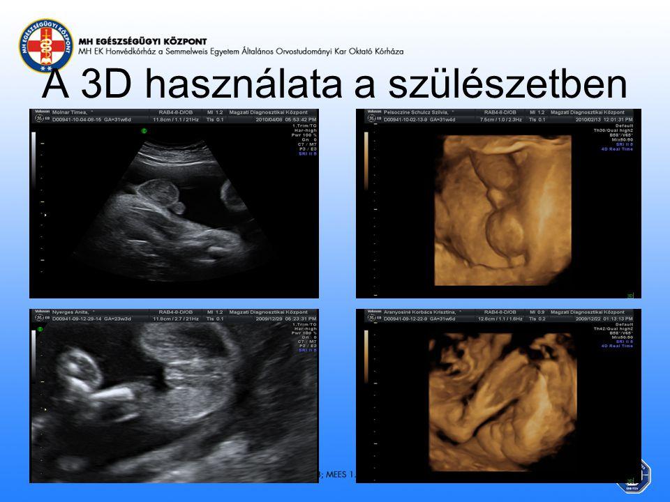 A 3D használata a szülészetben
